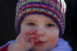 eczema toddler symptoms